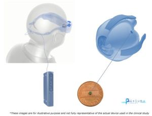 Pixium Vision active son implant de vision bionique chez cinq patients