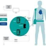 Cœur artificiel : Carmat lève 60 M€ pour passer au stade industriel