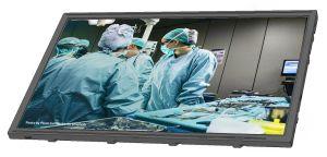Ecrans pour applications médicales | Kyocera